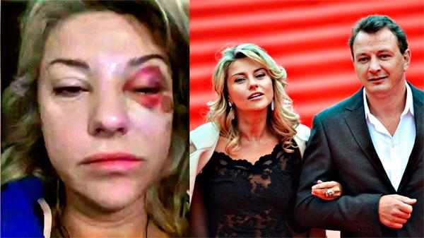 Марату Башарову грозит пять лет тюрьмы за избиение супруги