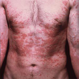 Атопический дерматит.